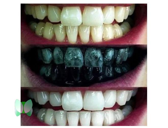 Khả năng làm trắng răng của Carbon hoạt tính